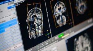 Нейрофизиологтар ұзақ жасаудың сырын ашты